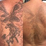 laser-tattoo-removal_undergroundtattoos_stevenage_SG1 1DA